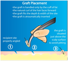 hair transplant treatment in vaishali nagar
