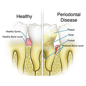 Best Dentist in Vaishali Nagar Jaipur