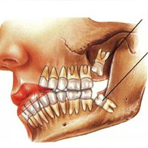 Dental Clinic in Vaishali Nagar Jaipur